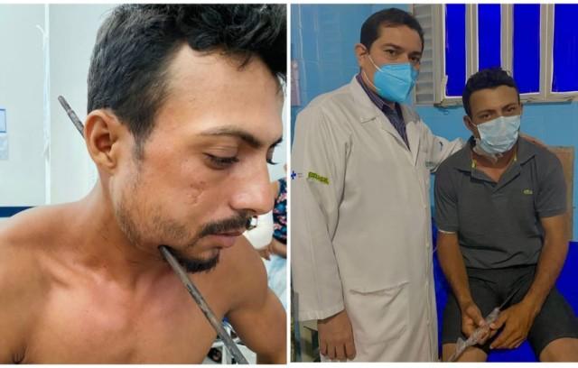 MILAGRE: Paciente sobrevive ao passar por cirurgia para retirar ferro que atravessou a lateral do pescoço